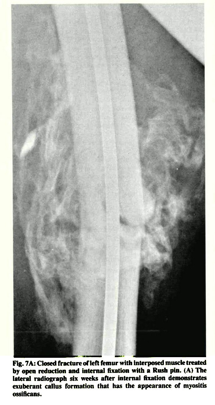 external callus formation of closed femoral shaft fractures, Muscles