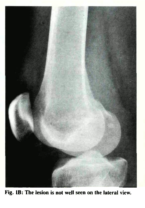 Fig. IB: The lesion is not well seen on the lateral view.
