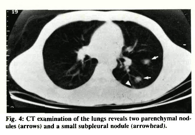 Fig. 4: CT examination of the lungs reveals two parenchymal nodules (arrows) and a small subpleural nodule (arrowhead).