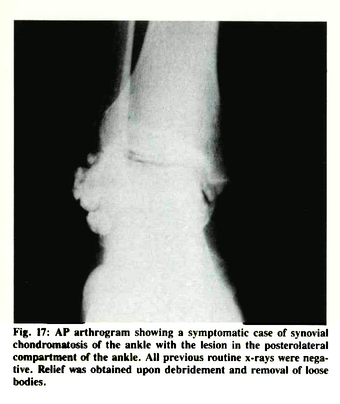 Fig. 17: AP arthrogram showing a symptomatic case of synovial chondromatosis of the ankle with the lesion in the posterolateral compartment of the ankle. All previous routine x-rays were negative. Relief was obtained upon debridement and removal of loose bodies.