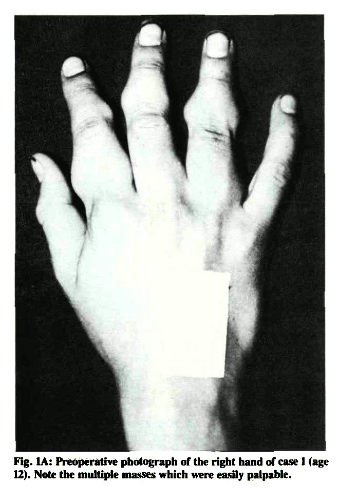 Fig. IA: Preoperative photograph of the right hand of case 1 (age 12). Note the multiple masses which were easily palpable.