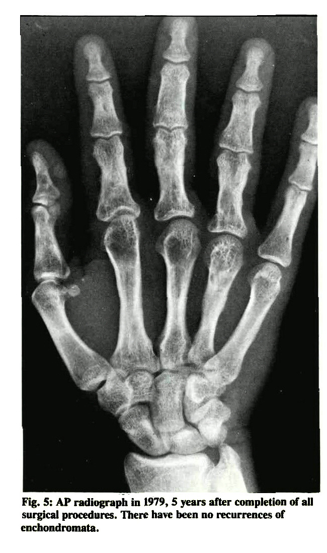 Fig. 5: AP radiograph in 1979, 5 years after completion of all surgical procedures. There have been no recurrences of enchondromata.