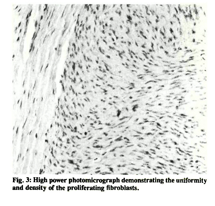 Fig. 3: High power photomicrograph demonstrating the uniformity and density of the proliferating fibroblasts.