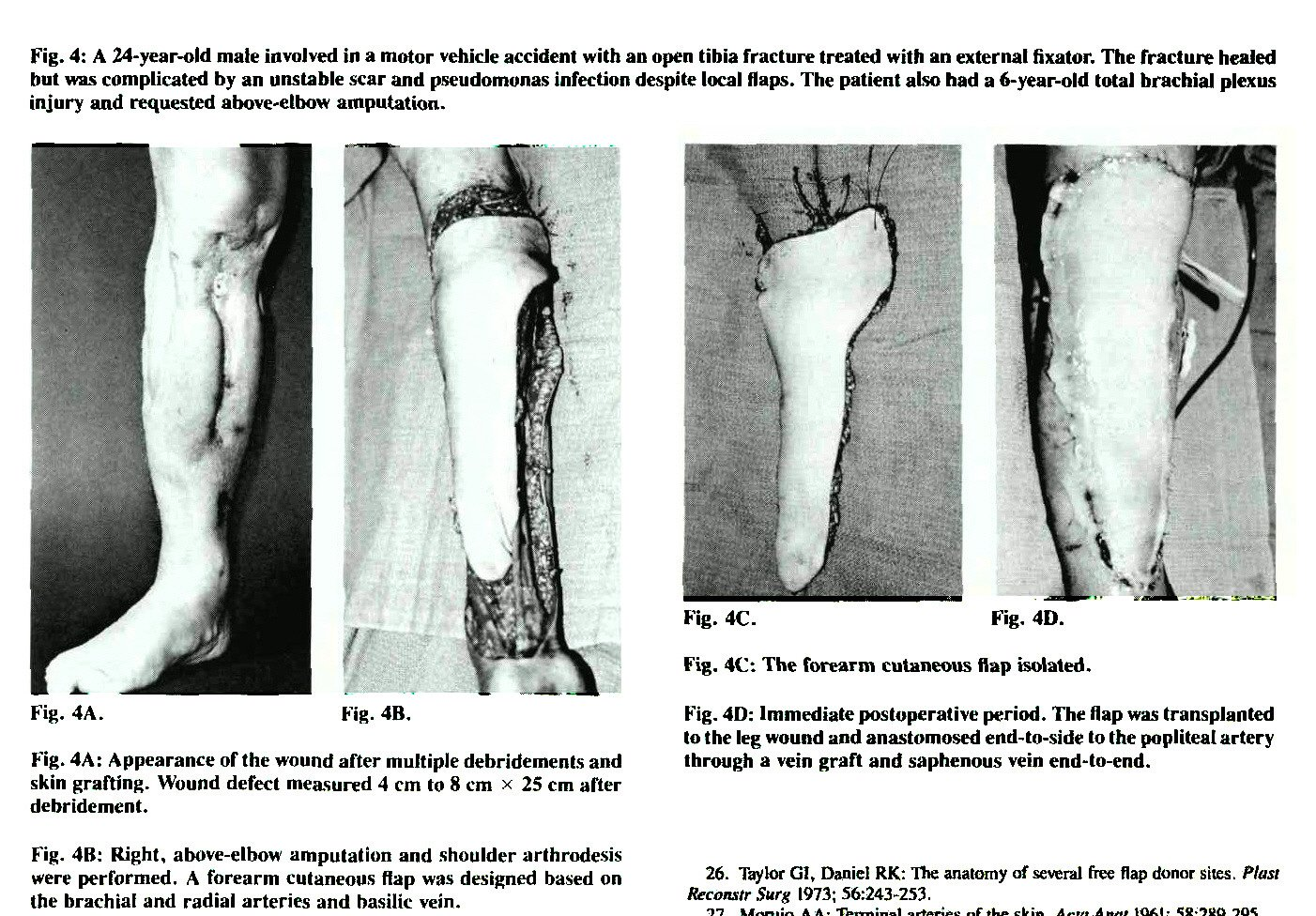Free Vascularized Flaps for Lower Extremity Reconstruction