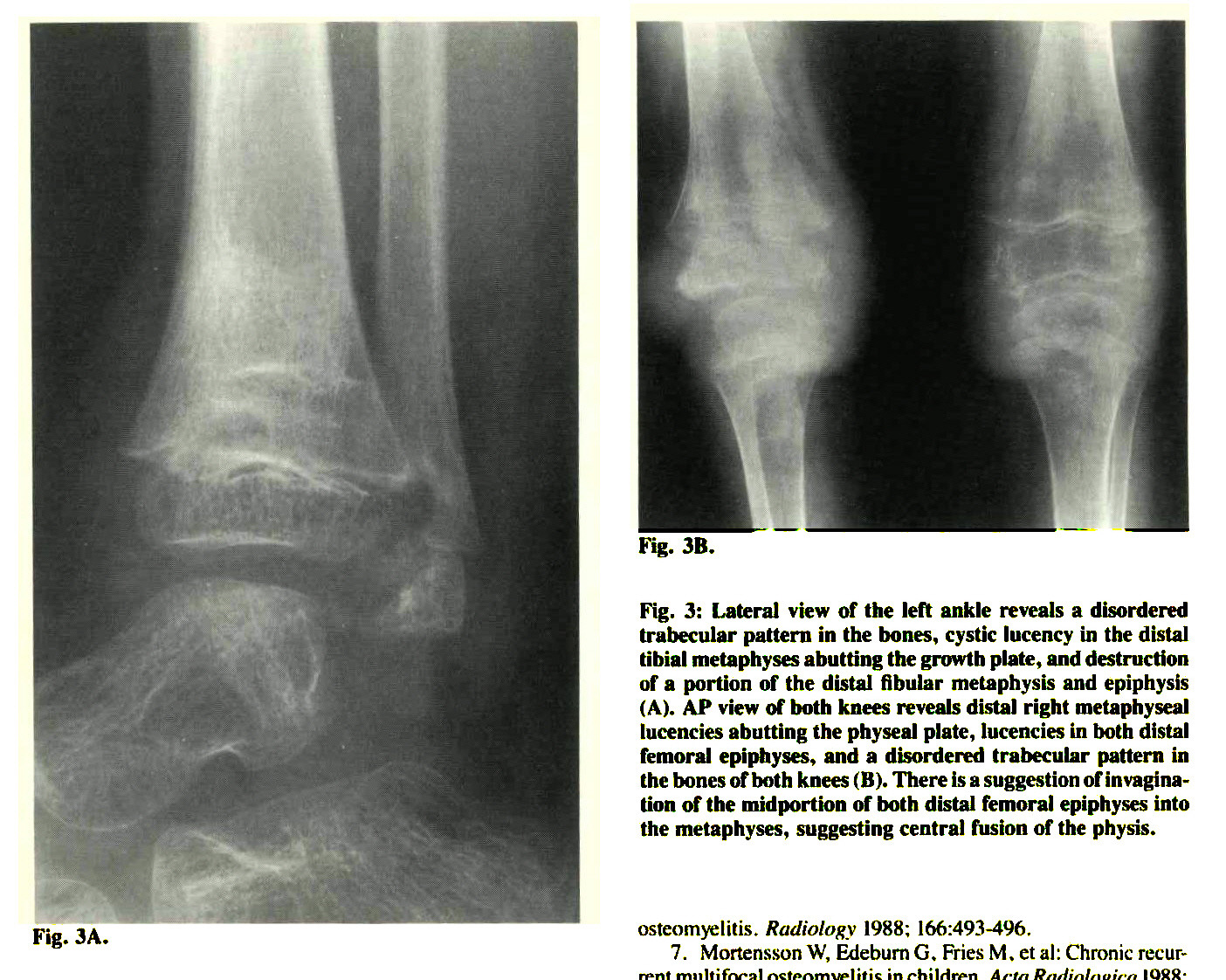 Fig. 3: Lateral view of the left ankle reveals a disordered trabecular pattern in the bones, cystic lucency in the distal tibial metaphyses abutting the growth plate, and destruction of a portion of the distal fibular metaphysis and epiphysis (A). AP view of both knees reveals distal right metaphyseal !licencies abutting the physeal plate, lucencies in both distal femoral epiphyses, and a disordered trabecular pattern in the bones of both knees (B). There is a suggestion of invagination of the midportton of both distal femoral epiphyses into the metaphyses, suggesting central fusion of the physis.
