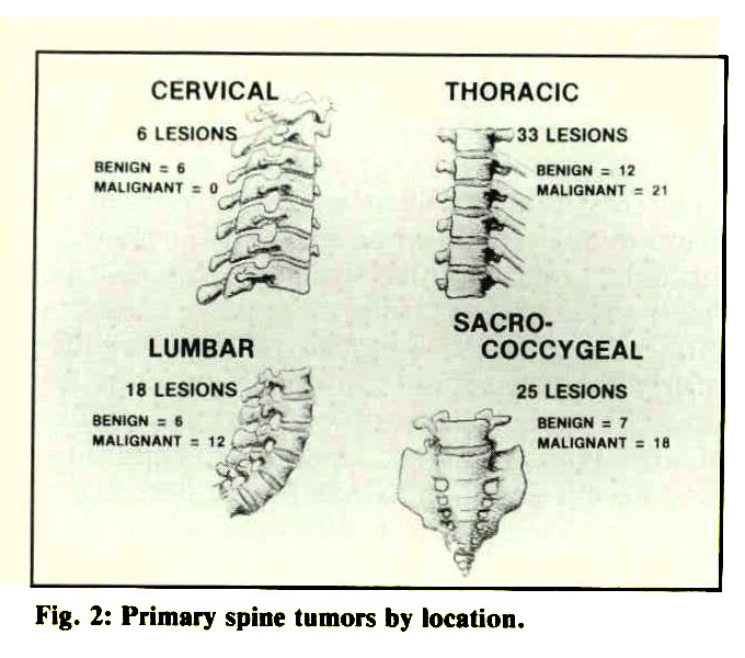 Fig. 2: Primary spine tumors by location.