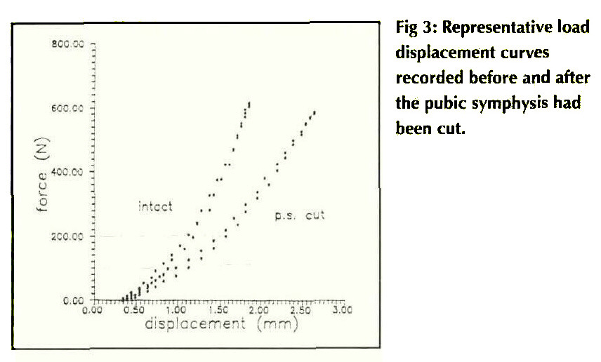 Fig 3: Representative load displacement curves recorded before and after the pubic symphysis had been cut.