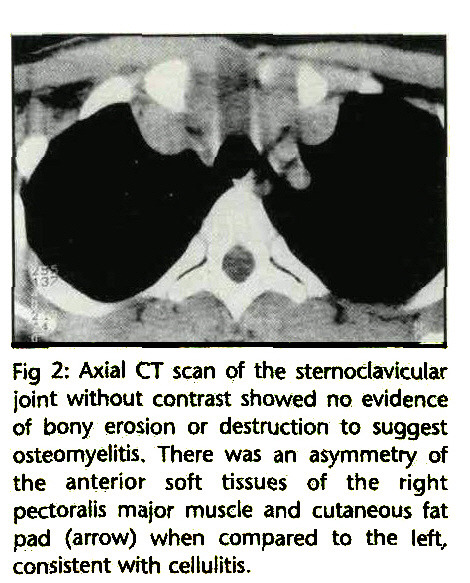 Fig 2: Axial CT scan of the sternoclavicular joint without contrast showed no evidence of bony erosion or destruction to suggest osteomyelitis. There was an asymmetry of the anterior soft tissues of the right pectoraiis major muscle and cutaneous fat pad (arrow) when compared to the left, consistent with cellulitis.