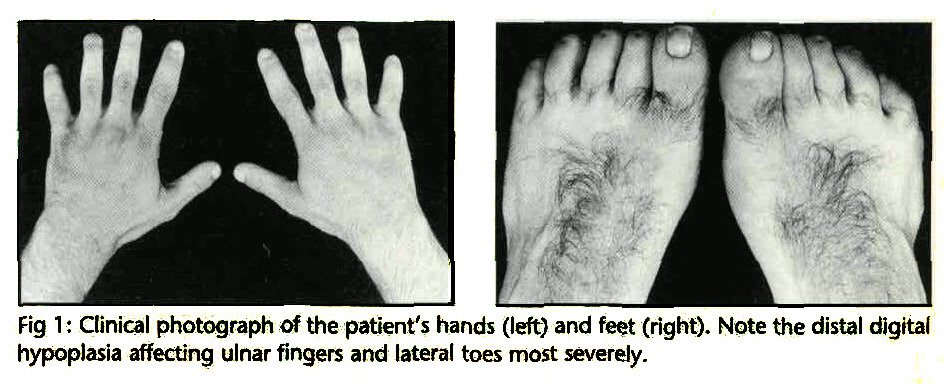 Fig 1 : Clinical photograph of the patient's hands (left) and feet (right). Note the distal digital hypoplasia affecting ulnar fingers and lateral toes most severely.