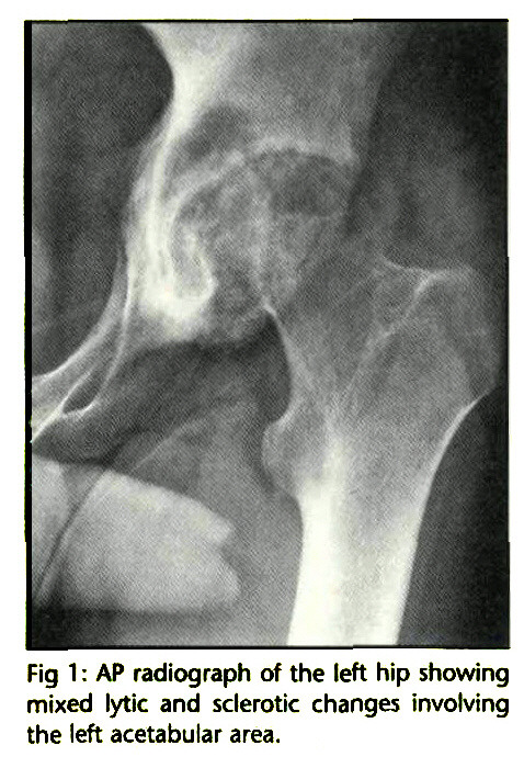 Fig 1 : AP radiograph of the left hip showing mixed lytic and sclerotic changes involving the left acetabular area.
