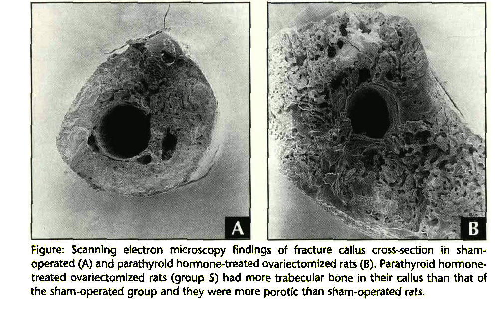 Figure: Scanning electron microscopy findings of fracture callus cross-section in shamoperated (A) and parathyroid hormone-treated ovariectomized rats (B). Parathyroid hormonetreated ovariectomized rats (group S) had more trabecular bone in their callus than that of the sham-operated group and they were more porotic than sham-operated rats.