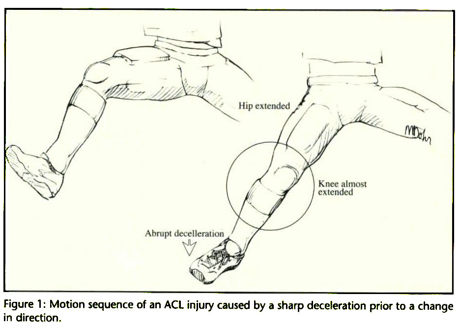 Figure 1 : Motion sequence of an ACL injury caused by a sharp deceleration prior to a change in rtirprHnn in direction.