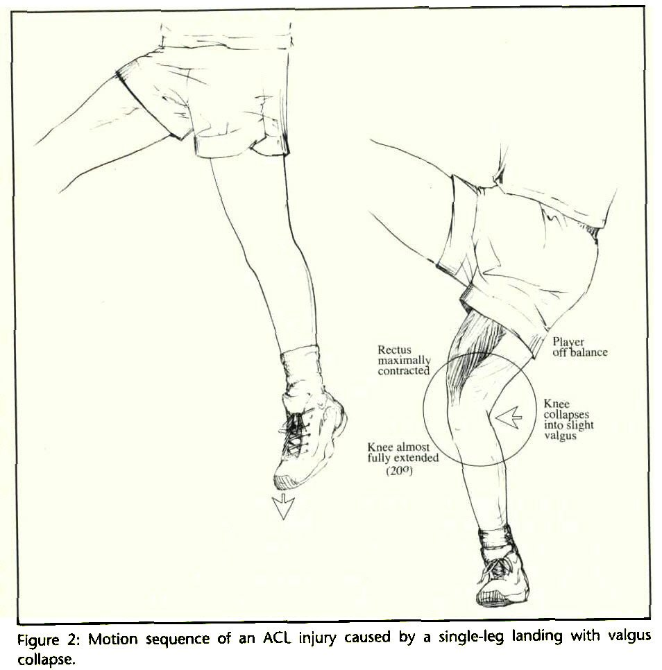 Figure 2: Motion sequence of an ACL injury caused by a single-leg landing with valgus collapse.