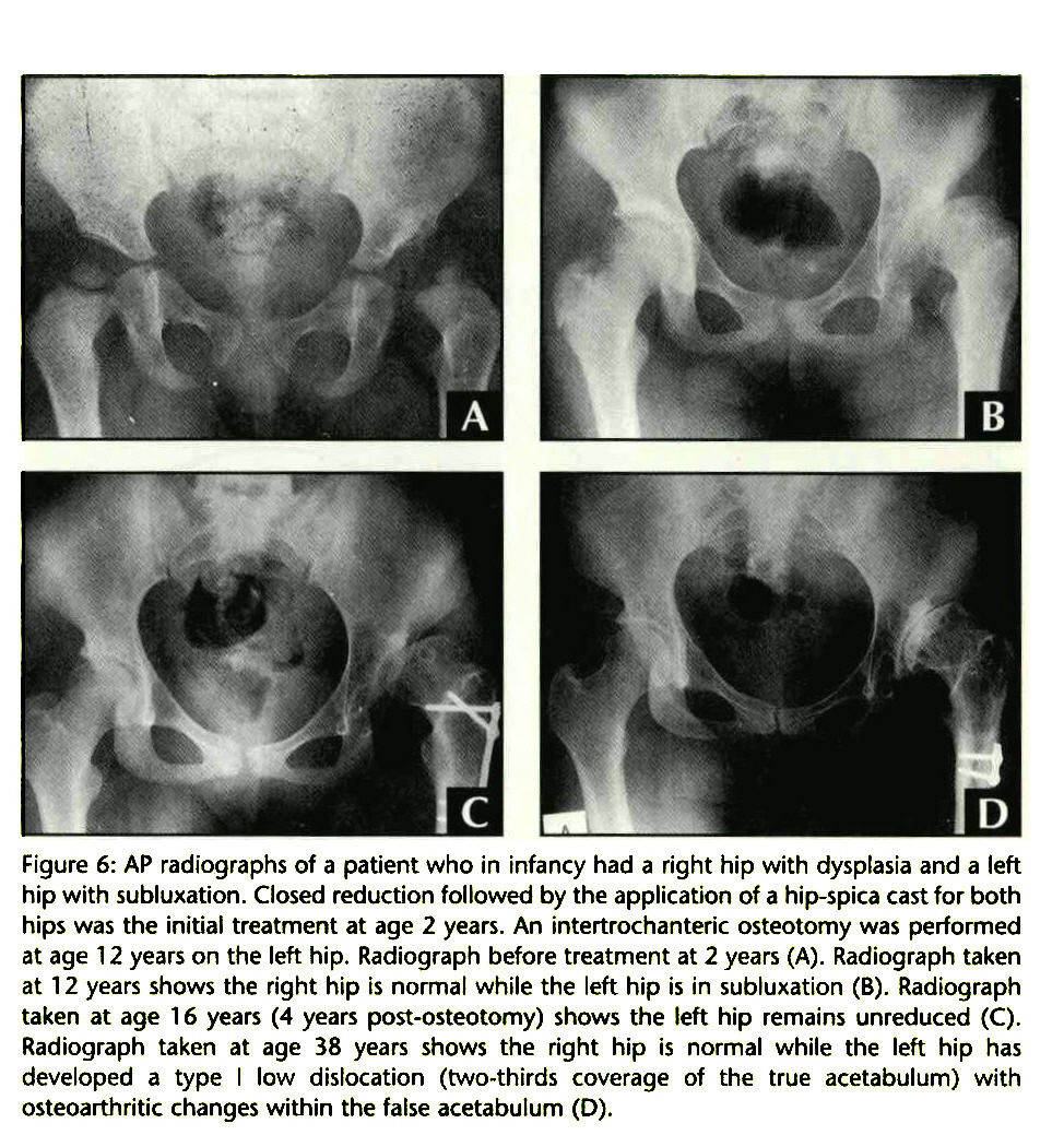 Figure 6: AP radiographs of a patient who in infancy had a right hip with dysplasia and a left hip with subluxation. Closed reduction followed by the application of a hip-spica cast for both hips was the initial treatment at age 2 years. An intertrochanteric osteotomy was performed at age 12 years on the left hip. Radiograph before treatment at 2 years (A). Radiograph taken at 12 years shows the right hip is normal while the left hip is in subluxation (B). Radiograph taken at age 1 6 years (4 years post-osteotomy) shows the left hip remains unreduced (C). Radiograph taken at age 38 years shows the right hip is normal while the left hip has developed a type I low dislocation (two-thirds coverage of the true acetabulum) with osteoarthritic changes within the false acetabulum (D).