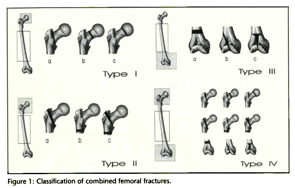 A New Classification and Treatment Protocol for Combined Fractures ...