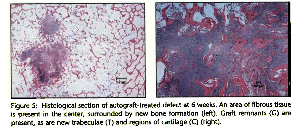 Figure 5: Histological section of autograft-treated defect at 6 weeks. An area of fibrous tissue is present in the center, surrounded by new bone formation (left). Graft remnants (G) are present, as are new trabeculae (T) and regions of cartilage (C) (right).