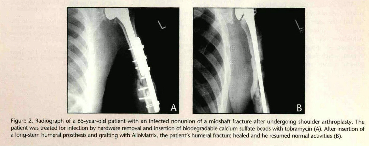 Figure 2. Radiograph of a 65-year-old patient with an infected nonunion of a midshaft fracture after undergoing shoulder arthroplasty. The patient was treated for infection by hardware removal and insertion of biodegradable calcium sulfate beads with tobramycin (A). After insertion of a long-stem humeral prosthesis and grafting with AlloMatrix, the patient's humeral fracture healed and he resumed normal activities (B).