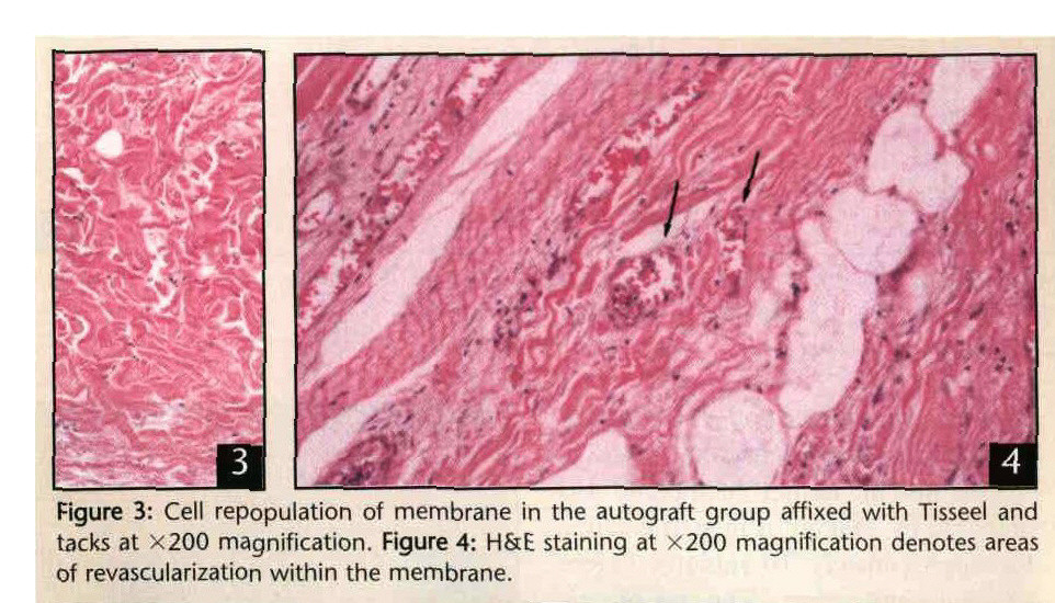 Figure 3: Cell repopulation of membrane in the autograft group affixed with Tisseel and tacks at X200 magnification. Figure 4: H&E staining at x200 magnification denotes areas of revascularization within the membrane.