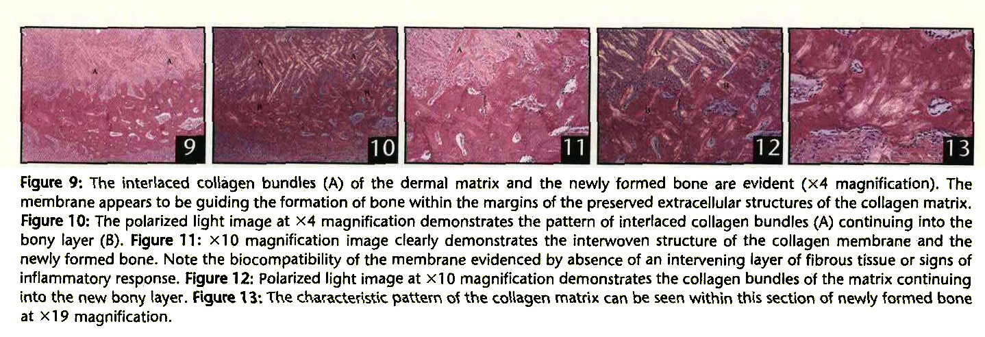 Figure 9: The interlaced collagen bundles (A) of the dermal matrix and the newly formed bone are evident (x4 magnification). The membrane appears to be guiding the formation of bone within the margins of the preserved extracellular structures of the collagen matrix. Figure 10: The polarized light image at X4 magnification demonstrates the pattern of interlaced collagen bundles (A) continuing into the bony layer (B). Figure 11: x10 magnification image clearly demonstrates the interwoven structure of the collagen membrane and the newly formed bone. Note the biocompatibility of the membrane evidenced by absence of an intervening layer of fibrous tissue or signs of inflammatory response. Figure 12: Polarized light image at X10 magnification demonstrates the collagen bundles of the matrix continuing into the new bony layer. Figure W. The characteristic pattern o1 the collagen matrix can be seen within this section of newly formed bone at Xl 9 magnification.