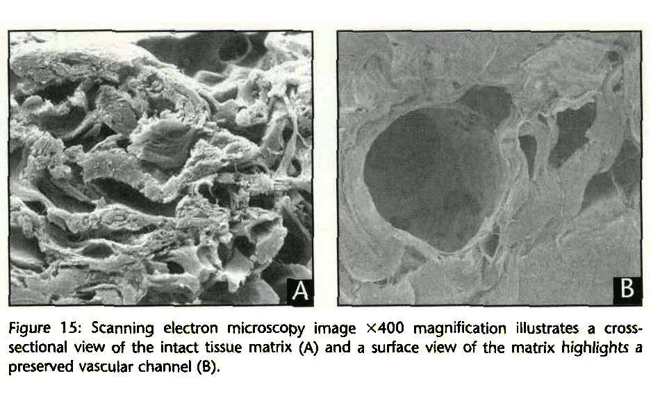 Figure 15: Scanning electron microscopy image ?400 magnification illustrates a crosssectional view of the intact tissue matrix (A) and a surface view of the matrix highlights a preserved vascular channel (B).