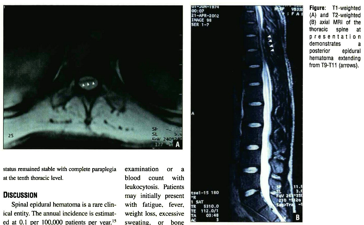 Figure: T1 -weighted (A) and T2-weighted (B) axial WlRI of the thoracic spine at presentation demonstrates a posterior epidural hematoma extending from T9-T1 1 (arrows).