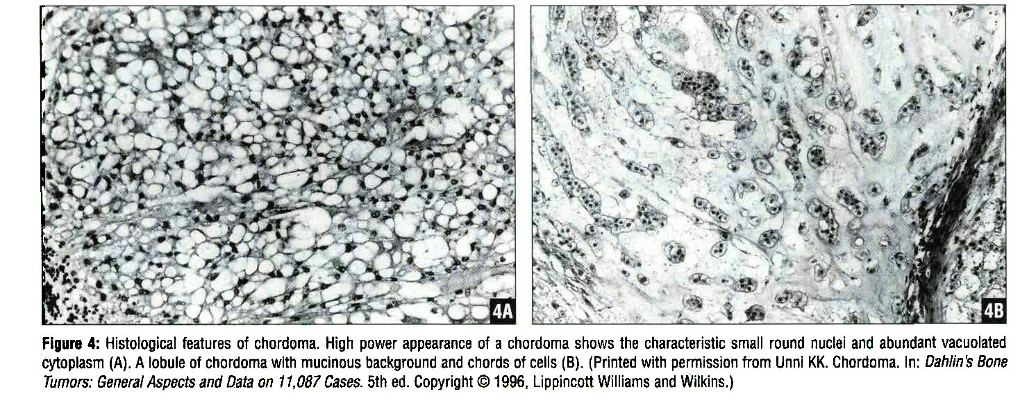 Figure 4: Histological features of chordoma. High power appearance of a chordoma shows the characteristic small round nuclei and abundant vacuolated cytoplasm (A). A lobule of chordoma with mucmous background and chords of cells (B). (Printed with permission from Unni KK. Ghordoma. In: Dahlin's Bone Tumors: General Aspects and Data on 1 1,087 Cases. 5th ed. Copyright © 1996, Lippincott Williams and Wilkins.)