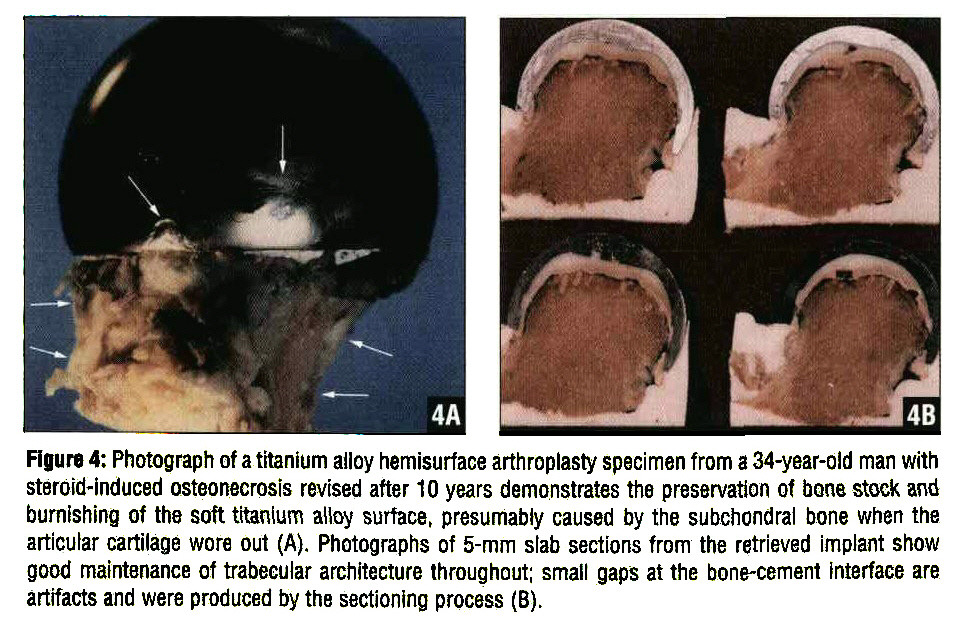 Rgure 4: Photograph of a titanium alloy hemisurface arthroplasty specimen from a 34-year-old man with steroid-induced osteonecrosis revised after 10 years demonstrates the preservation of bone stock and burnishing of the soft titanium alloy surface, presumably caused by the subchondral bone when the articular cartilage wore out (A). Photographs of 5-mm slab sections from the retrieved implant show good maintenance of trabeeular architecture throughout; small gaps at the bone-cement interface are artifacts and were produced by the sectioning process (B).