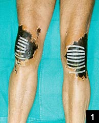 Figure 1: Necrosis of skin over knee
