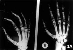 """Figure 3A: Radiograph of a 28-year-old woman with """"endobones"""" in metacarpal bones"""