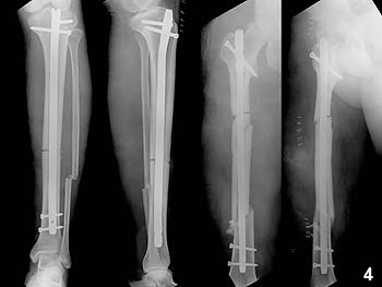 Figure 4: Postoperative radiographs showing the reduced tibial and femoral fractures