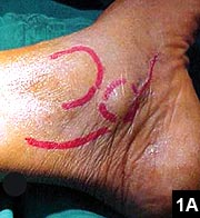 Figure 1A: Clinical photograph showing location of swelling in relation to the medial malleolus and flexor digitorum longus tendon