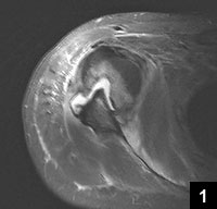 Figure 1: Preoperative MRI revealing anterior dislocation with large Hill-Sachs lesion