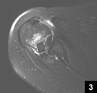 Figure 3: Postoperative MRI revealing reduced glenohumeral joint and restored contour of the humeral head
