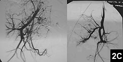 Figure 2C: Preoperative selective embolization of the tumor was performed