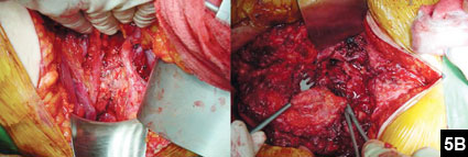 Figure 5B: Transverse partial sacrectomy below the S1 level was done