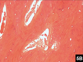 Figure 5B: Photomicrograph showing hyperostotic cortical bone trabeculae of varying thickness
