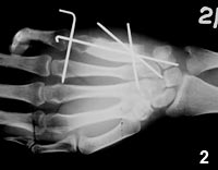 Figure 2: Early postoperative radiograph of the hand
