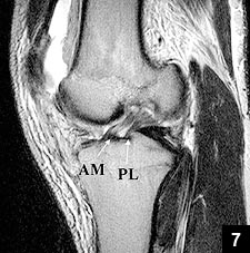 Figure 7: Oblique-sagittal T1-weighted MRI showing the AM and PL bundles
