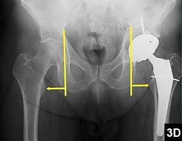 Figure 3D: The left acetabular cup position is determined relative to the anatomically normal upper pelvis