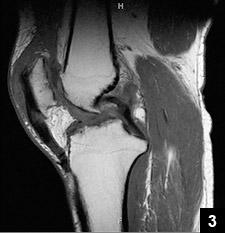 Figure 3: MRI of a chronic quadriceps tendon rupture