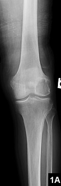 Figure 1A: A large lytic lesion in the lateral femoral condyle