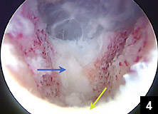 Figure 4: Intraoperative endoscopic view after resection of bone spur