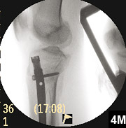 Figure 4M: Tibial nail with locking screws in place