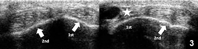 Figure 3: Axial view of the first and second extensor compartments