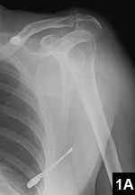 Figure 1A: 3-part fracture of the proximal humerus