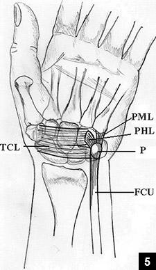 Figure 5: Illustration of the pisotriquetral complex