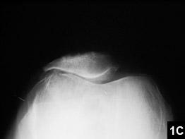 Figure 1C: Isolated patellofemoral arthritis and slight patellar tilt
