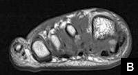 Figure B: Dislocation of the tibial sesamoid of the hallux on MRI