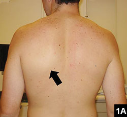 Figure 1A: Scapular symmetry with no muscle contraction