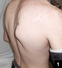 Figure 1: Pseudowinging of the right scapula